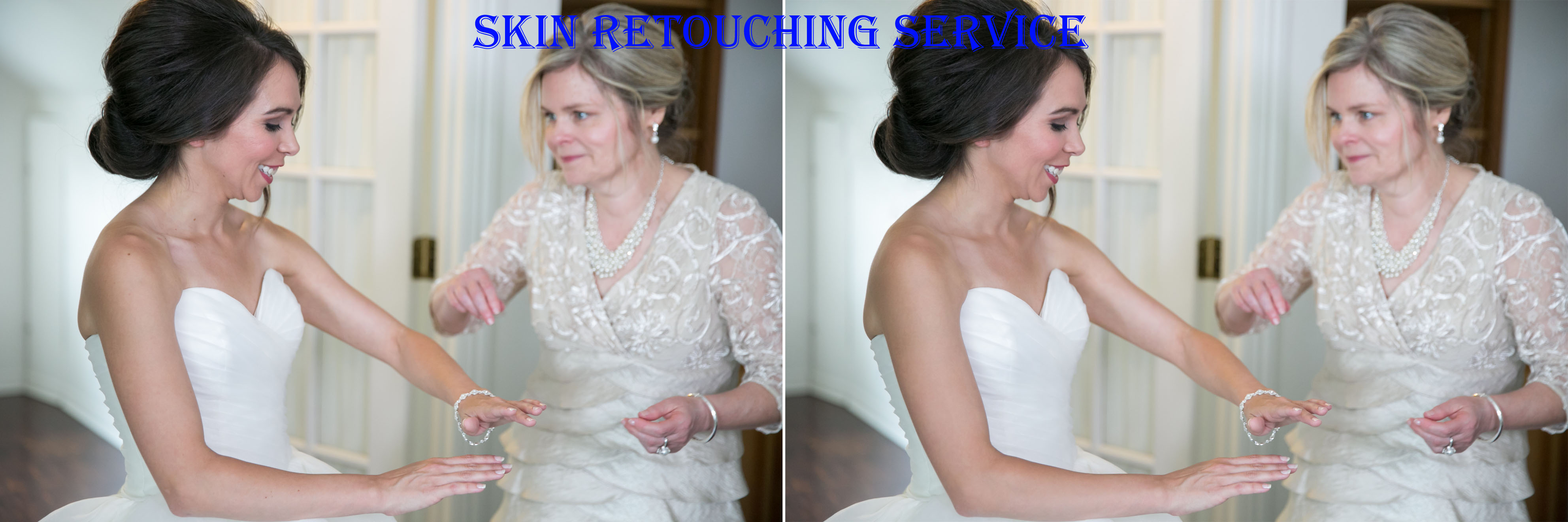 Skin retouching is important for your wedding photography images